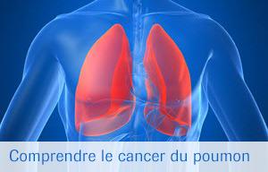 Roche - Le cancer bronchique du non-fumeur   Roche
