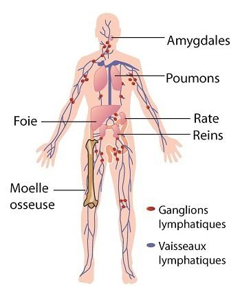 cancer hodgkinien symptomes