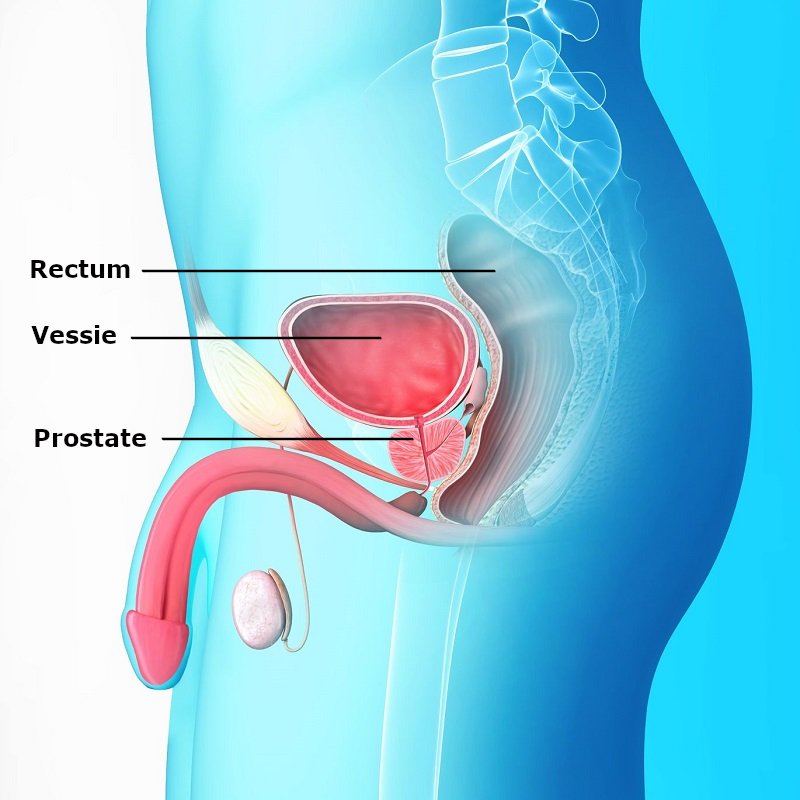taux de psa sang prostate