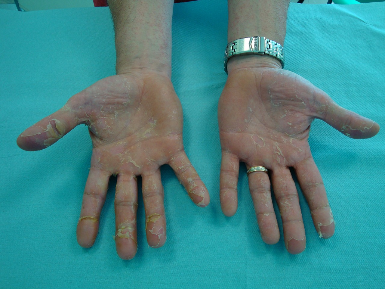 syndrome main-pied definition