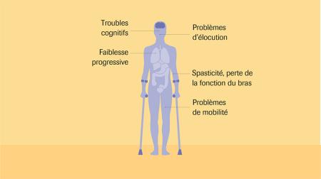 Différences entre les formes de sclérose en plaques (SEP ...